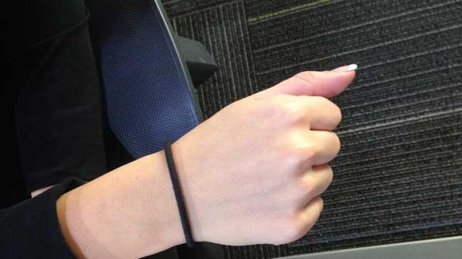 Woman Requires Surgery to Remove Abscess After Wearing Hair Tie on Wrist 4b986b58e5b