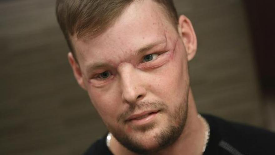 Twin Tragedies Give Survivor A New Face