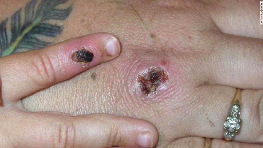 Where has Monkeypox spread to in the UK? Is YOUR area affected?