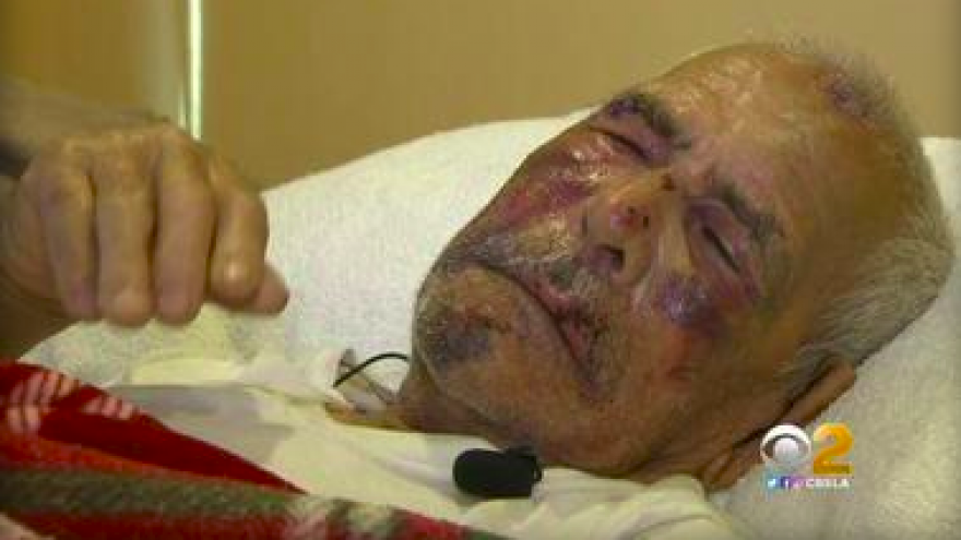 Woman accused of attacking 91-year-old is charged with attempted murder